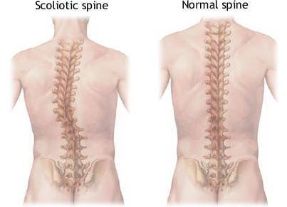 Scoliosis and back pain